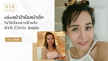 Transforming from Grown Up Face to Baby Face Is Easy for AYA Clinic