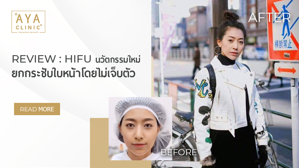Review: HIFU, a New Innovation for Face Lifting without Any Pain