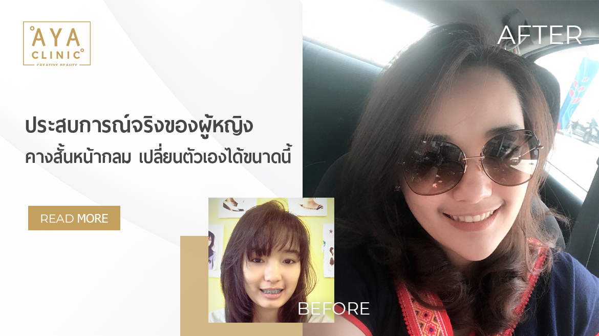 True Experience of How I Have Changed Myself from a Short-Chin and Round-Face Girl
