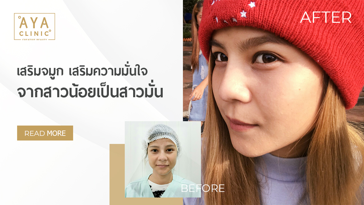 Rhinoplasty… from a Little Girl to a Confident Girl