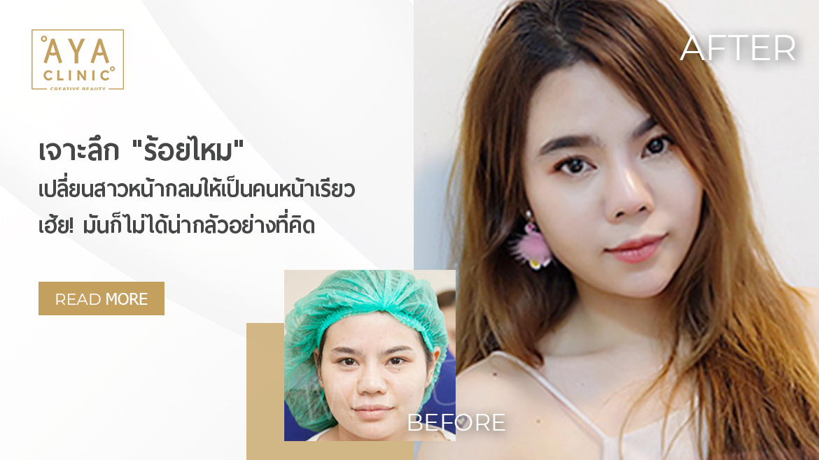 """Get to Know """"Thread Lift"""". From a Round Face Girl to a V Shape Girl!"""