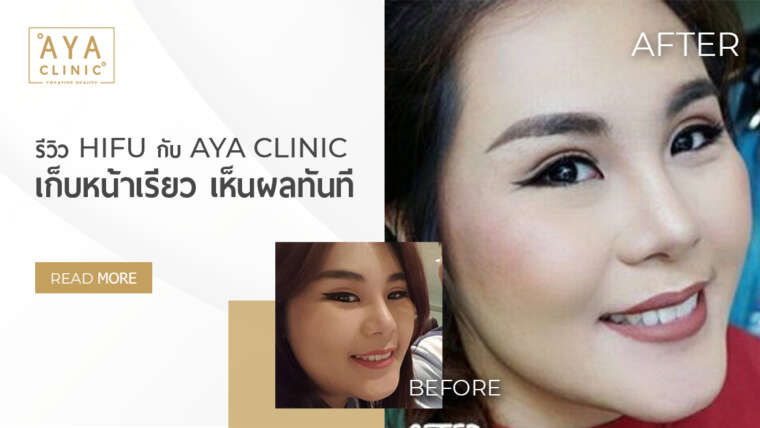 HIFU with AYA Clinic Review: Have an On-The-Fleek Face with an Immediate Result