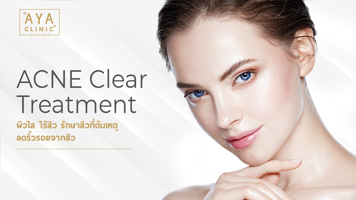 Free Acne with ACNE Clear Treatment  Acne Clear Treatment