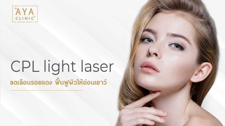 CPL light laser  ลดเลือนรอยแดง ฟื้นฟูผิวให้อ่อนเยาว์