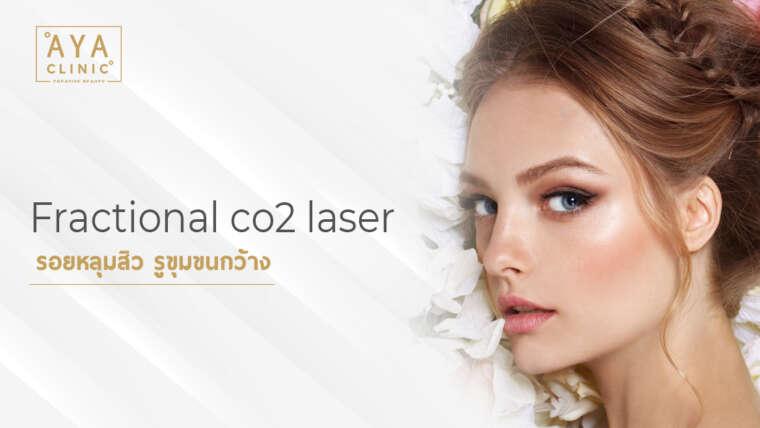 Fractional co2 laser 痘坑,毛孔粗大镭射激光