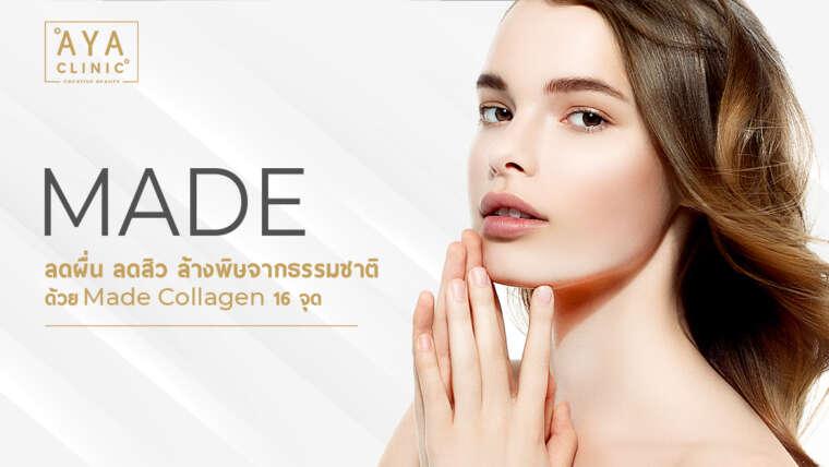 MADE 祛除丘疹、祛痘、自然排毒 16点Made Collagen 针。