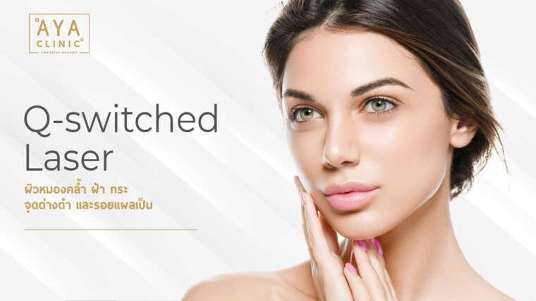 QSwitch ND Yag Laser 射光祛除祛斑霜、黑斑、痘印,改善暗沉肤色提亮美白