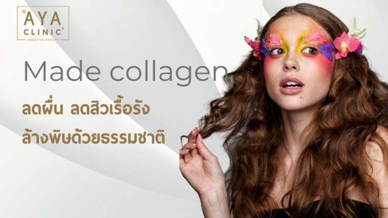 MADE ลดผื่น ลดสิว ล้างพิษจากธรรมชาติ ด้วยการฉีด Made Collagen 16 จุด