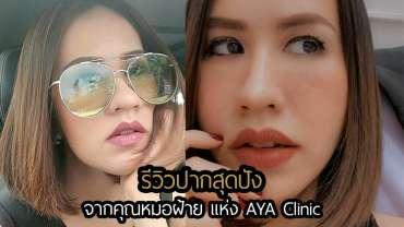 รีวิวปากสุดปัง จากคุณหมอฝ้าย แห่ง AYA Clinic